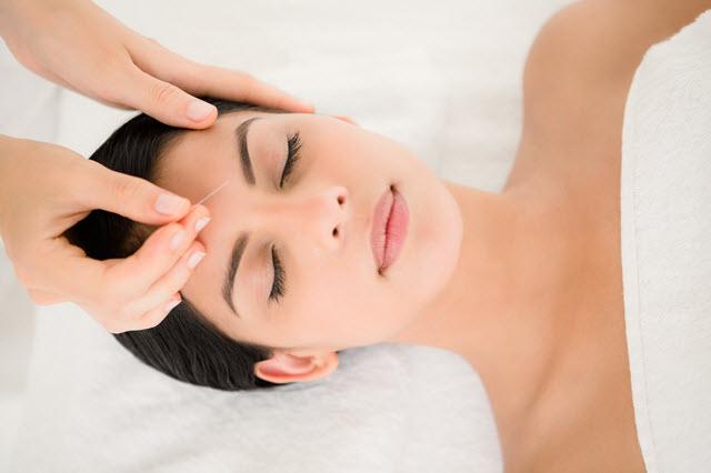 Acupuntura para estresse - Imagem aplicação de acupuntura para estresse