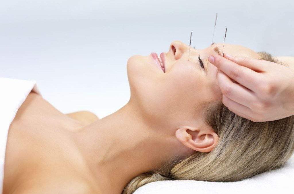 acupuntura para enxaqueca e cefaléia