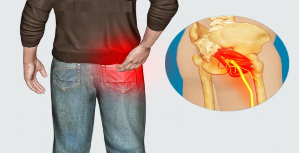 dor no ciático conhecida como citalgia