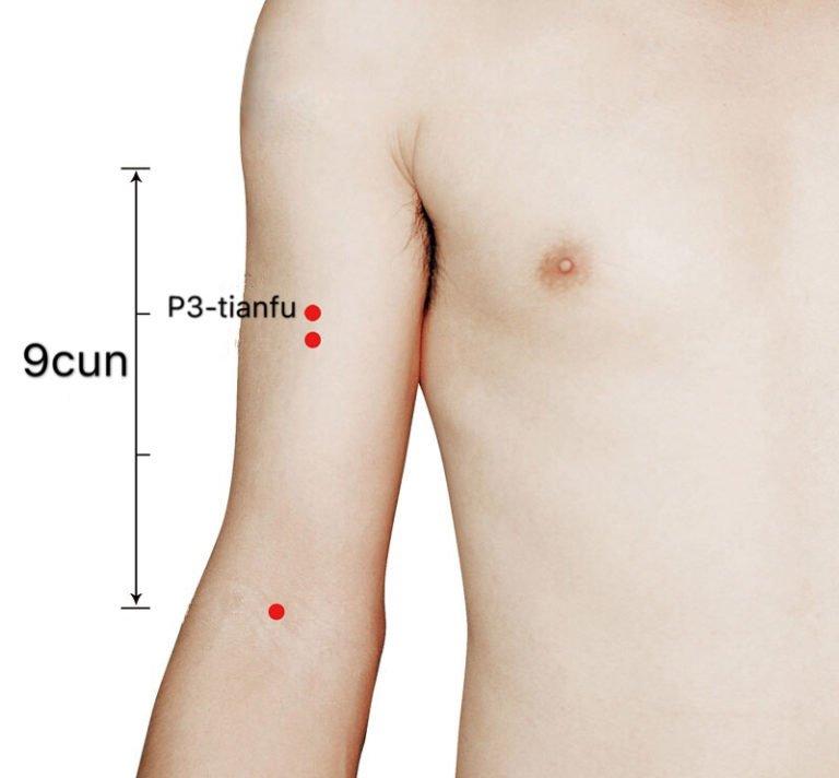 P3 acupuntura