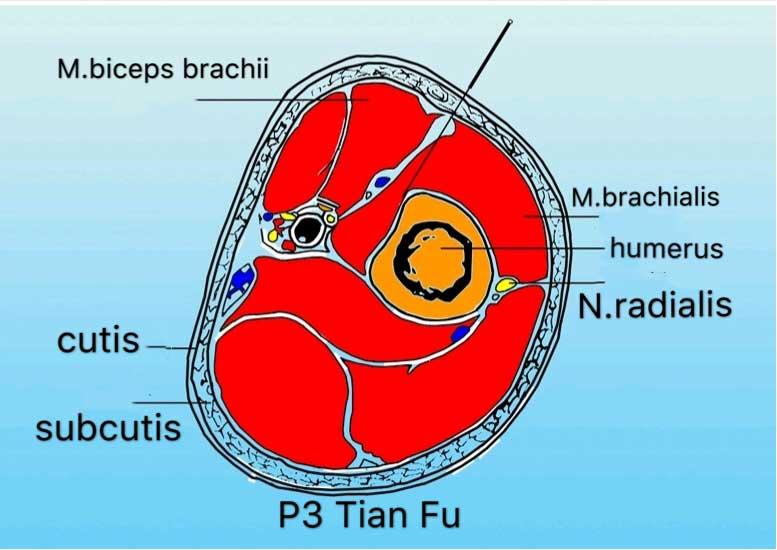localização P3 acupuntura