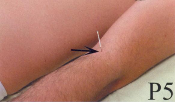 Ponto P5 acupuntura e sua localização