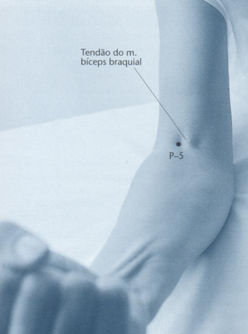 Como encontrar o Ponto P5 de acupuntura
