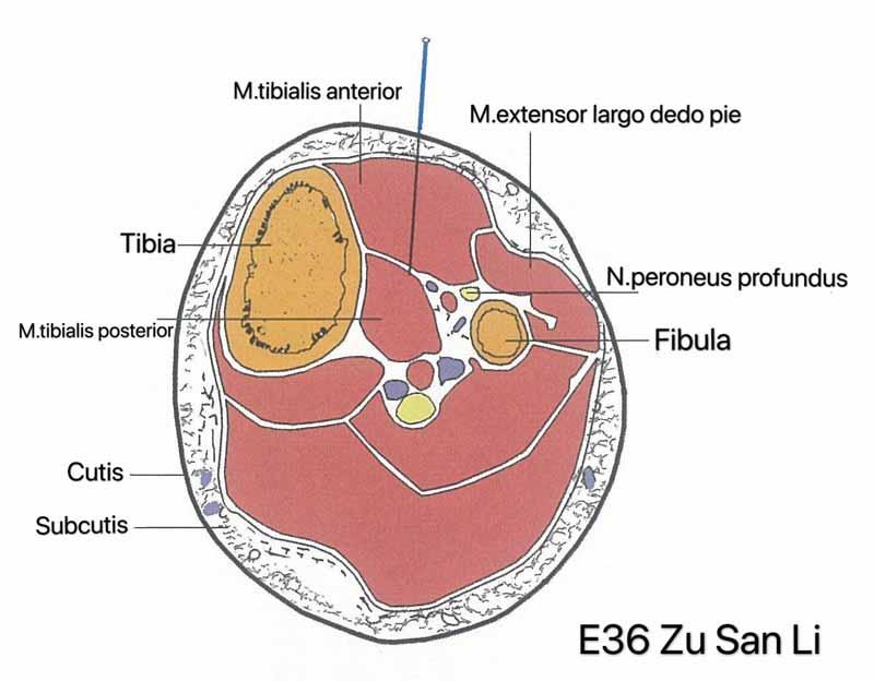 Inserção do E36 acupuntura