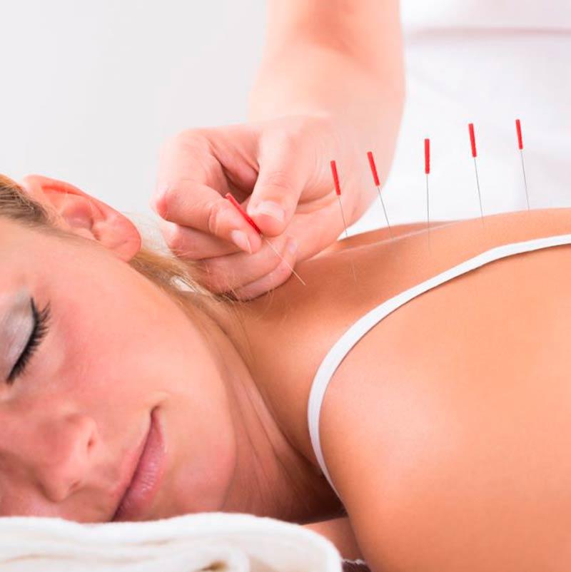 Quantas sessões é preciso para tratamento na acupuntura