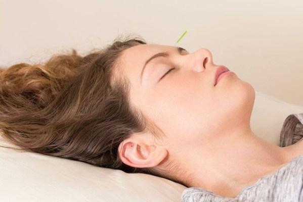 Antes da consulta da acupuntura o que fazer