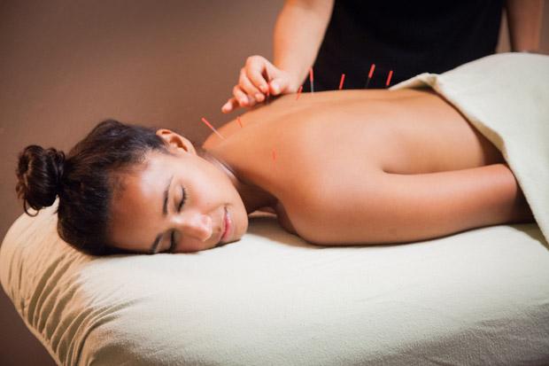 Como é a aplicação da acupuntura na região da paulista