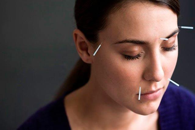 A acupuntura é igual para todos os pacientes