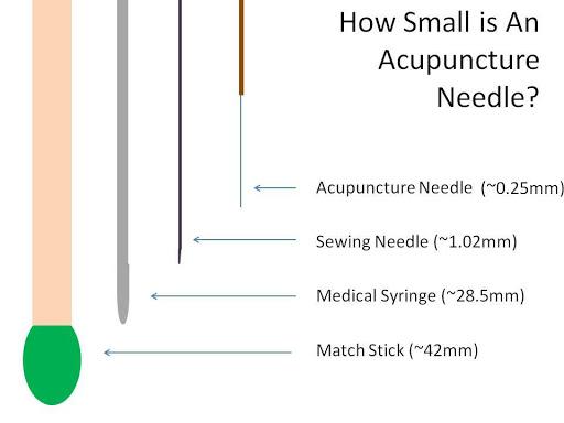 acupuntura Vila Clementino pode doer?