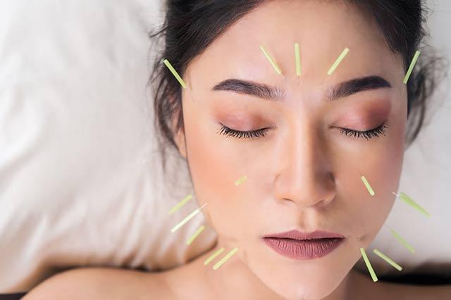 fatores Endógenos na acupuntura para ansiedade