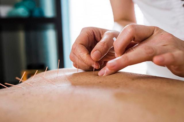 Propriedades dos pontos de acupuntura praca da arvore
