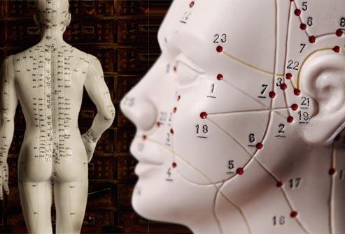 Propriedades Terapêuticas Distantes dos Pontos de acupuntura Praça da árvore