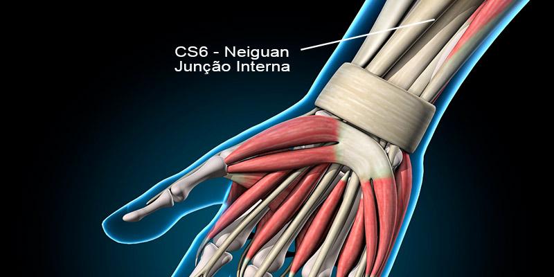 CS6 acupuntura