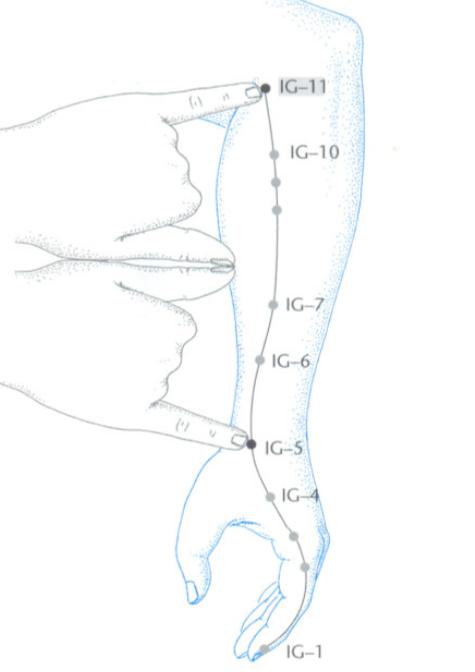IG11 acupuntura