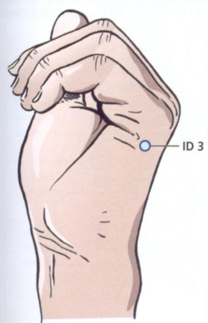 ID3 acupuntura