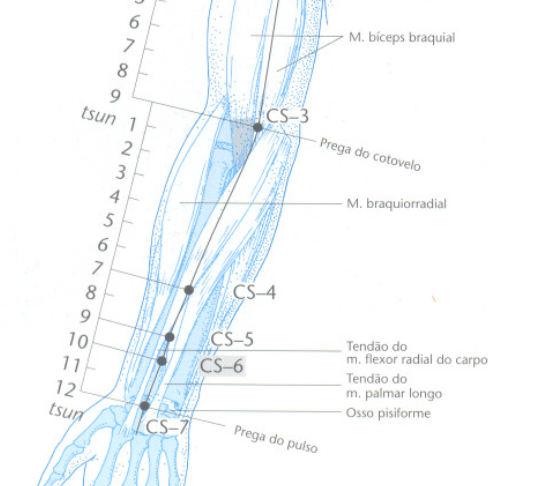 CS6 acupuntura neiguan