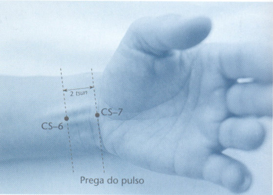 CS6 acupuntura neiguan localização
