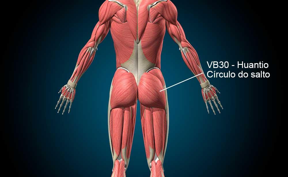 VB30 acupuntura