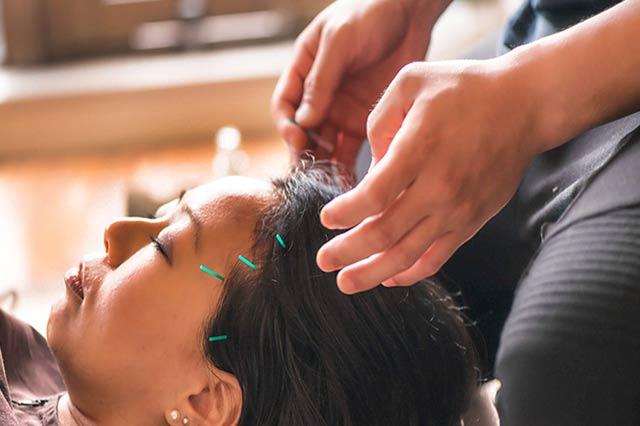 Origem da acupuntura Chinesa