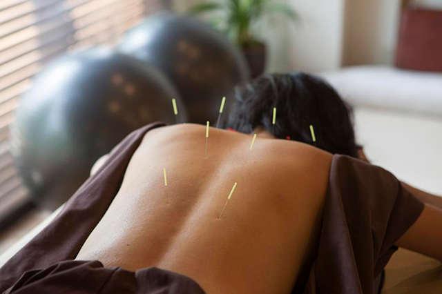 a acupuntura pode doer
