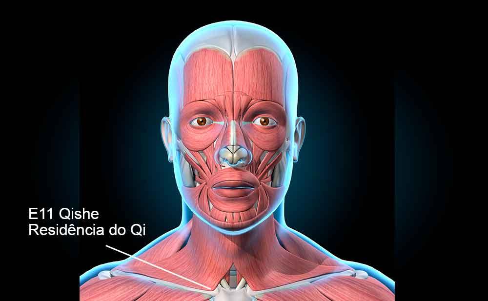 E11 acupuntura