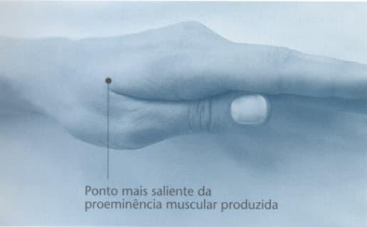 Localizacao ig4 acupuntura