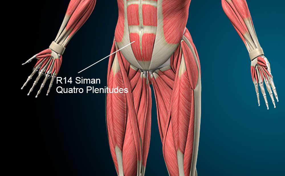 R14 acupuntura